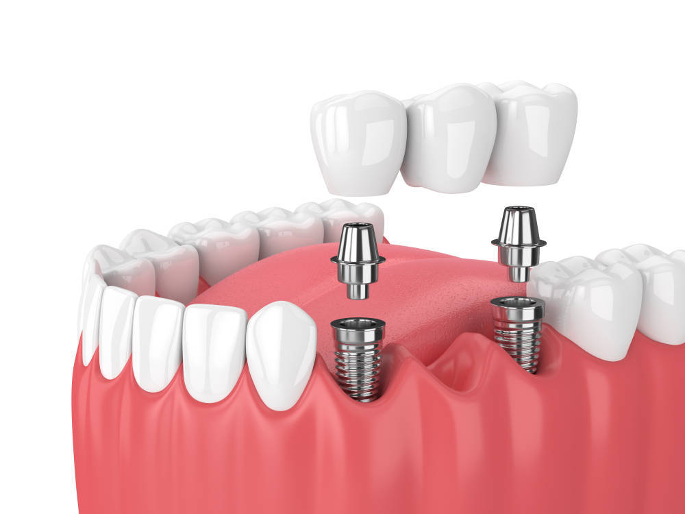 Implante dental, una excelente alternativa